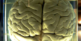Study Shows How Intelligence In Humans First Evolved
